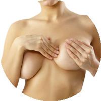chirurgia estetica al seno mastopessi
