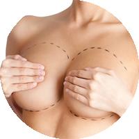 chirurgia estetica al seno mastoplastica additiva