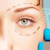 chirurgia estetica del viso blefaroplastica
