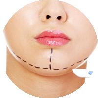 chirurgia estetica del viso mentoplastica