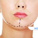 intervento di mentoplastica